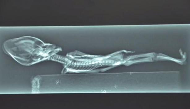 Tiny-alien-skeleton-contains-human-DNA1